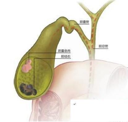 胆石症是指发生在胆囊或胆管的结石 中医有办法效治疗胆石症